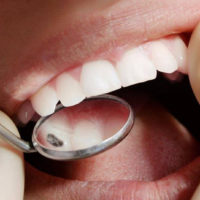 Odontoiatria restaurativa o conservativa